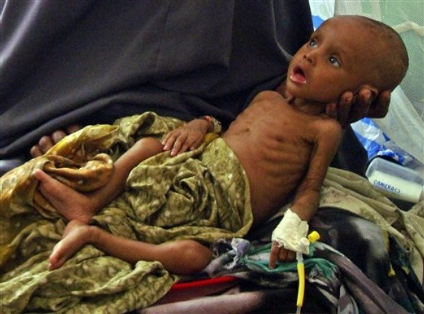 Somalia Sick Children